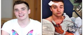 Gay YouTube Star Claims To Be Beaten In Brutal Hate Crime — Police: He's Lying [VIDEO]
