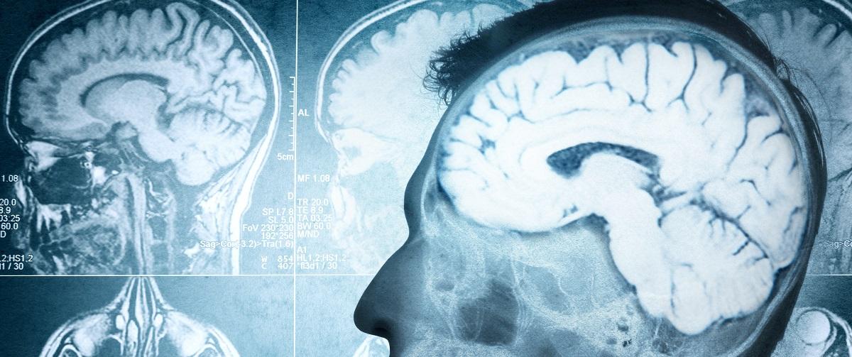 Photo shows brain scans. (Shutterstock)