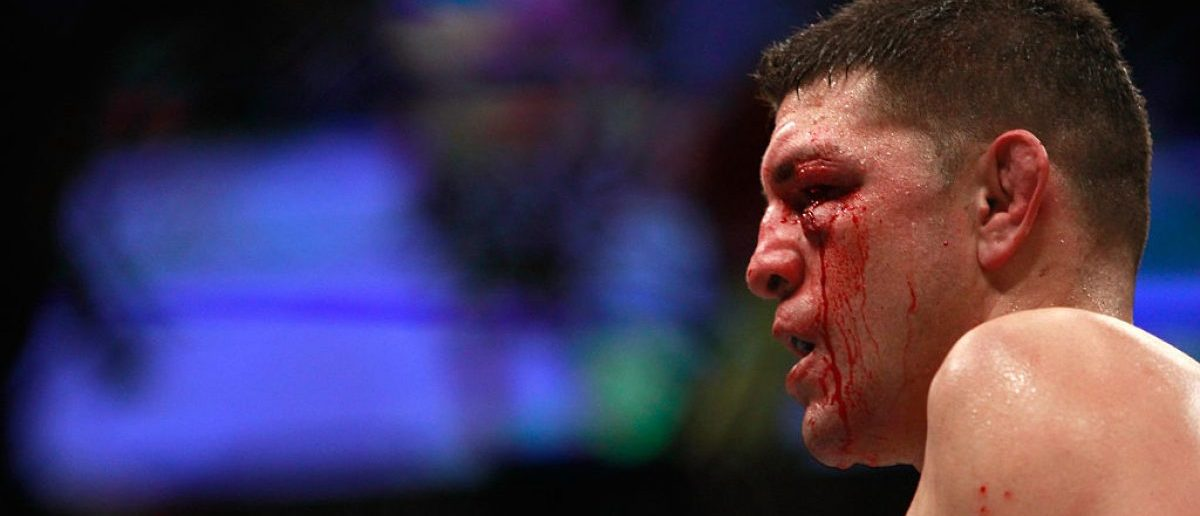 Nick Diaz (Credit: Getty Images/ Steve Marcus)