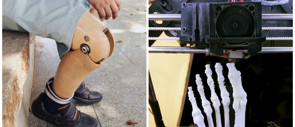 Left: [Shutterstock - RUCHUDA BOONPLIEN] Right: [Shutterstock - Dario Sabljak]