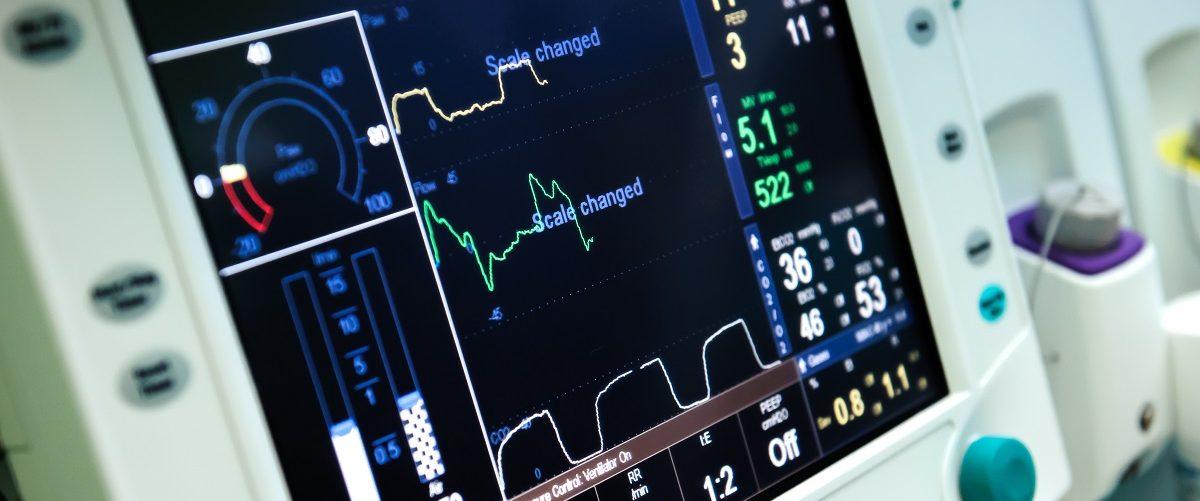Picture of mechanical ventilation equipment. (Alex Tihonovs/Shutterstock).