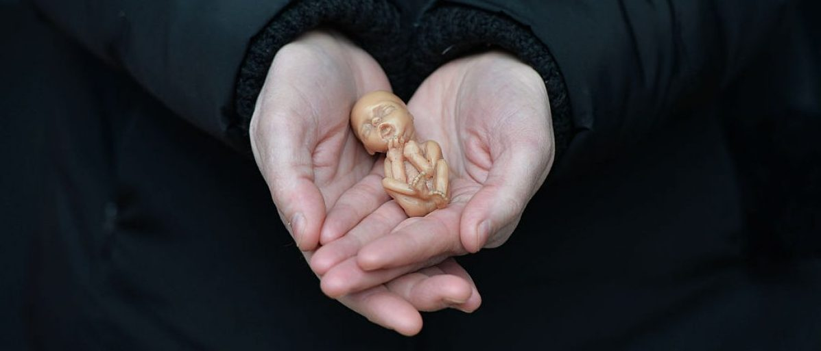 BELFAST, NORTHERN IRELAND - APRIL 07: A Pro Life campaigner displays a plastic doll representing a 12 week old foetus as she stands outside the Marie Stopes Clinic on April 7, 2016 in Belfast, Northern Ireland. The anit abortion supporters have protested outside the clinic where women can go for advice concerning terminating their pregnancy since it opened in 2012. The abortion laws in Northern Ireland are in the news again after a 21 year old Northern Irish woman was convicted and sentenced earlier this week for procuring a miscarriage. The woman who cannot be named for legal reasons had pleaded guilty to two charges of procuring her own abortion by using a poison and of supplying a poison with intent to procure a miscarriage, she was ten-twelve weeks pregnant at the time. She was given a three-month prison sentence by Judge David McFarland at Belfast high court, which was suspended for two years. Unlike the rest of the United Kingdom, the law in Northern Ireland rules that terminating a pregnancy is illegal except in very limited circumstances. (Photo by Charles McQuillan/Getty Images)