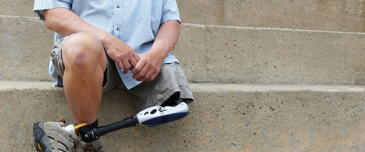 Amputee sits on steps. Natalie Schorr/Shutterstock.