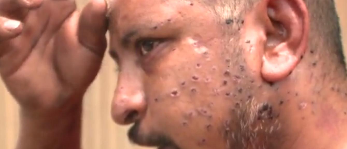 Alonso Solis (Screenshot/KXAN) http://kxan.com/2017/06/15/cyclist-hit-by-shotgun-blast-in-random-austin-drive-by-has-pellets-in-brain/