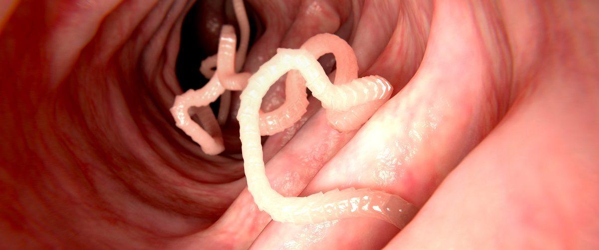 Parasites in intestine. Juan Gaertner/Shutterstock.