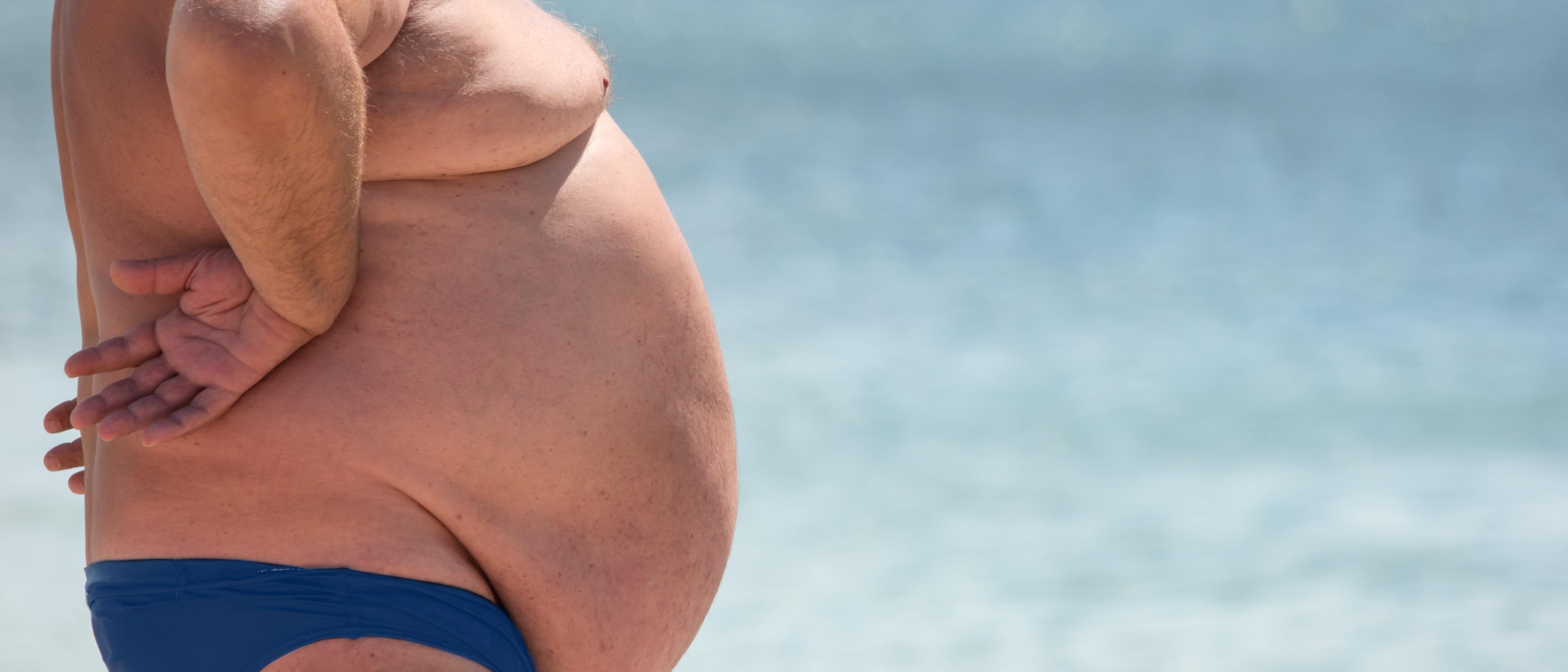Obese man in bathing suit (Shutterstock/DenisProduction.com)