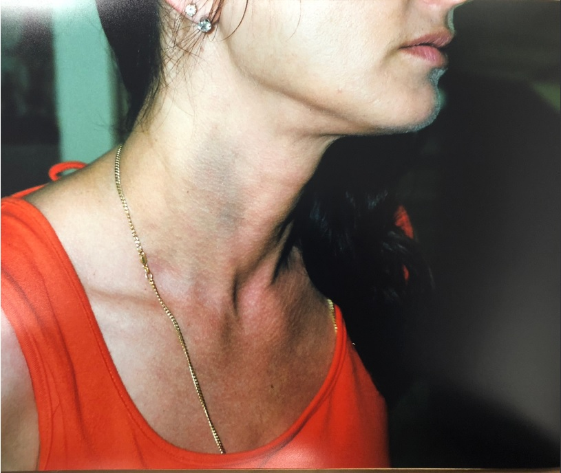 Dallas Garland's bruised neck the day after her alleged assault by Steve Sisolak on August 24, 2000. Courtesy Dallas Sisolak