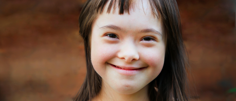 Down syndrome child (Shutterstock/Denis Kuvaev)