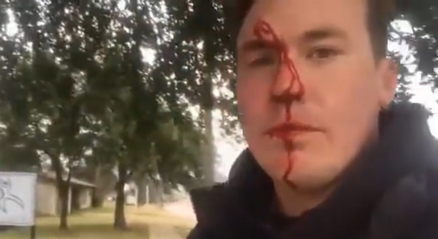 Ryan Roberts was attacked outside a Fort Worth, Tex.on Jan. 11, 2019. YouTube screenshot.