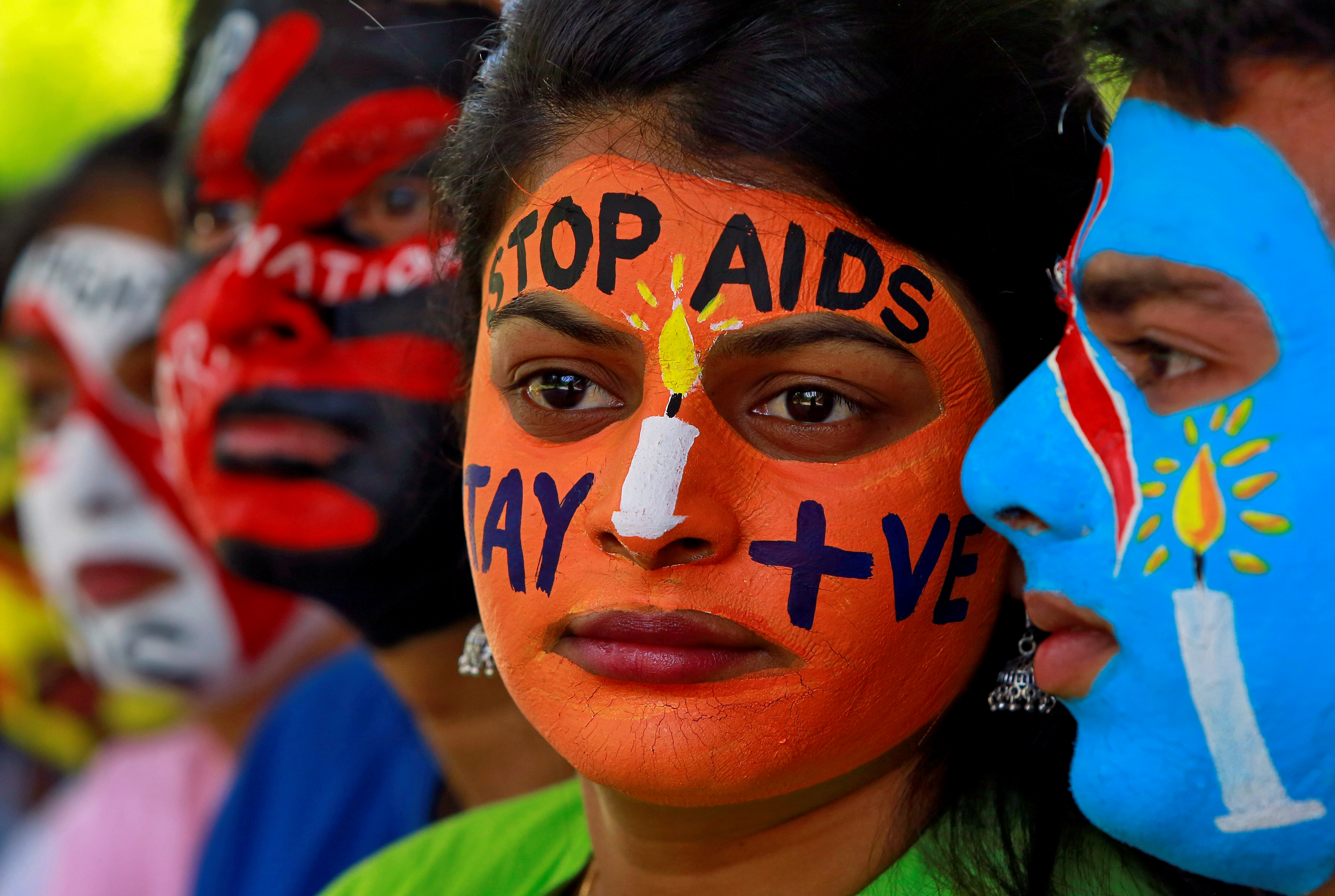 Second HIV-Positive Patient Reported Cured, Giving Hope That Disease Will Soon Be History