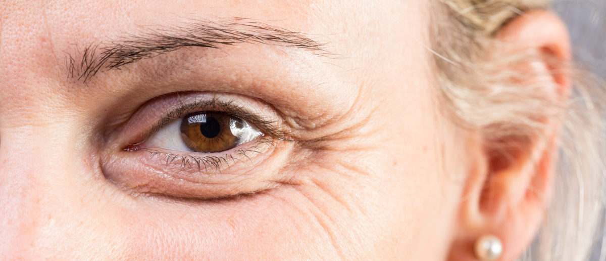 Guess That Wrinkle: Do You Know Who It Is?