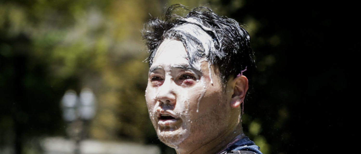Andy Ngo, a Portland-based journalist, is seen covered in unknown substance after unidentified Rose City Antifa members attacked him on June 29, 2019 in Portland, Oregon. (Moriah Ratner/Getty Images)