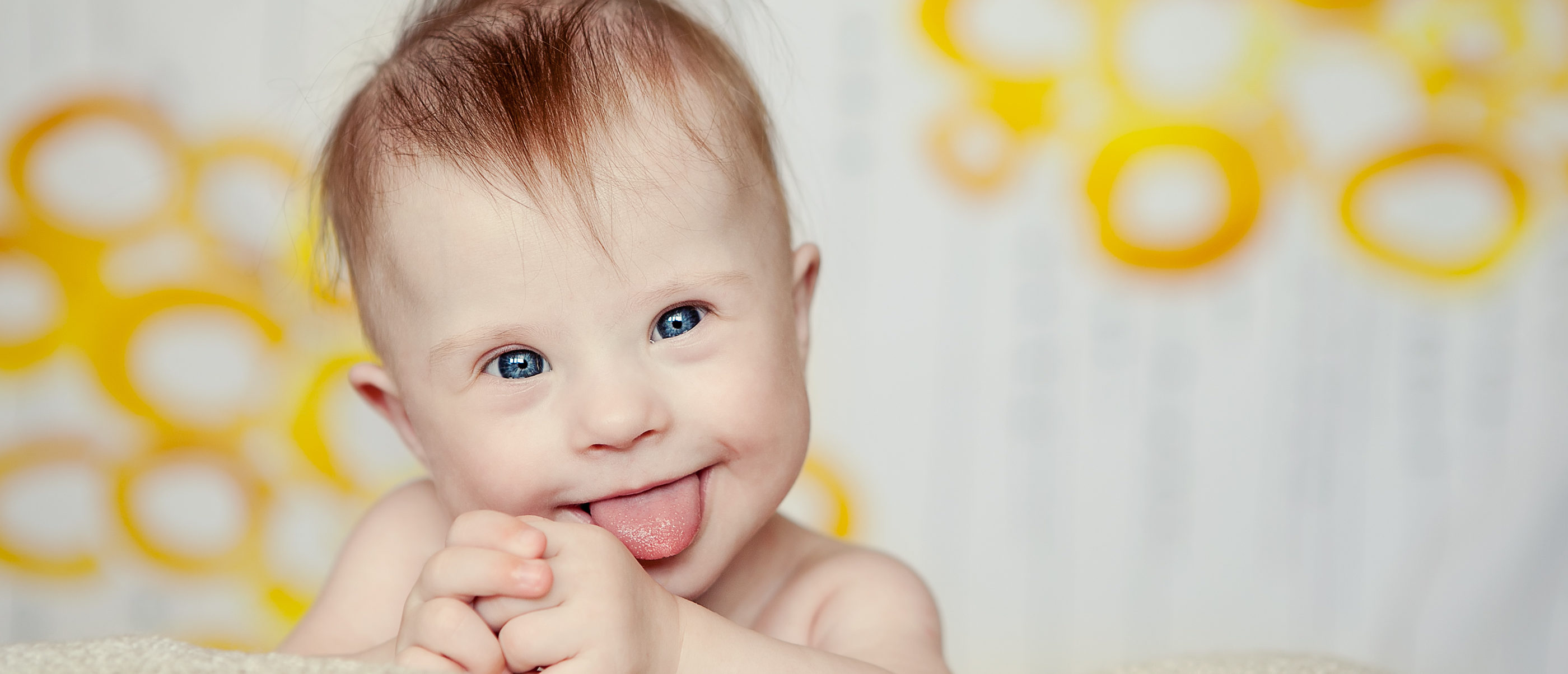 Cheerful baby with Down Syndrome. (Shutterstock/Eleonora_os)