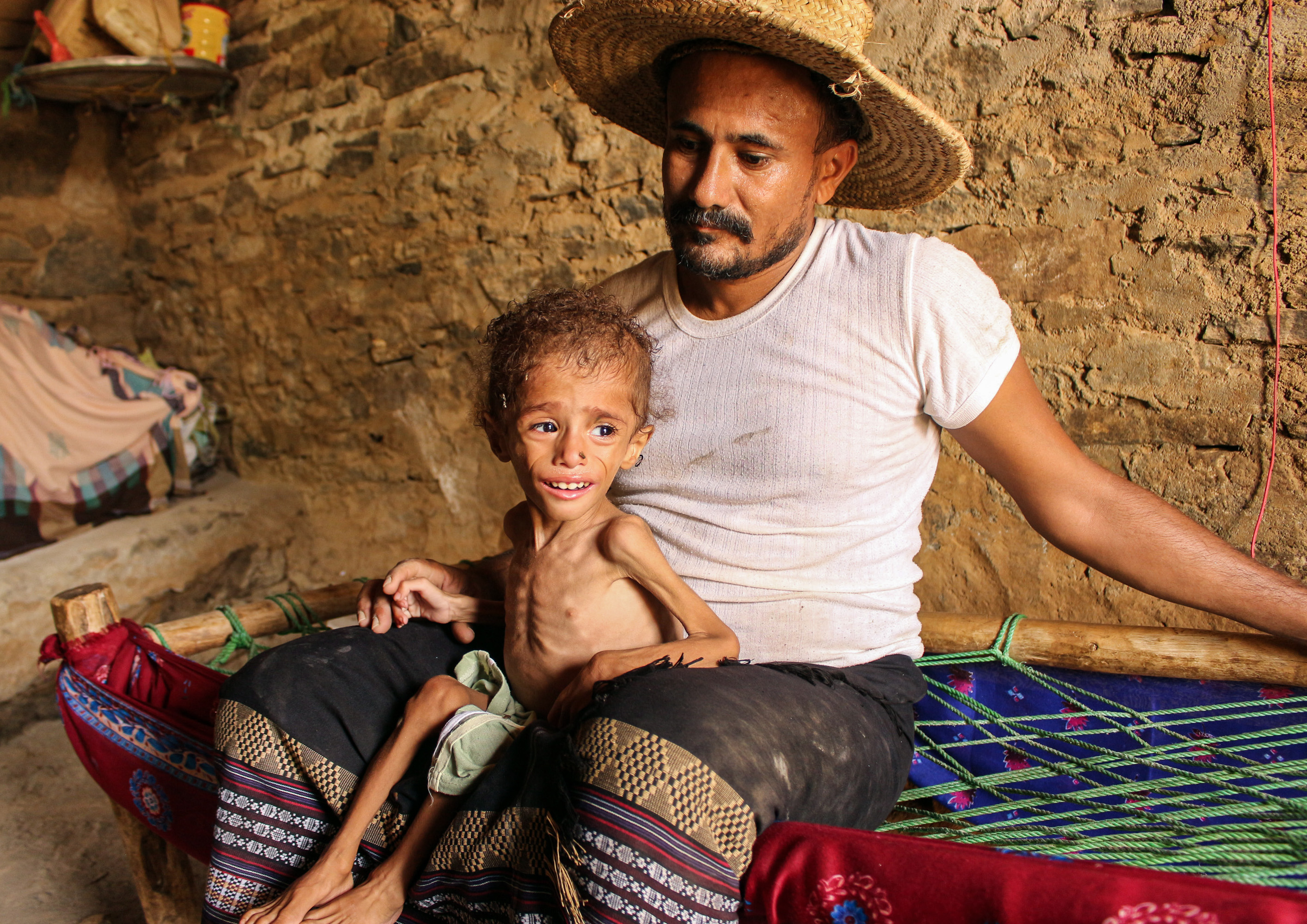 EDITORS NOTE: Graphic content / Moaz Ali Mohammed, a two-year-old Yemeni boy from an impoverished family in the Bani Amer region, who suffers from acute malnutrition and weighing eight kilograms, sits on his father's lap at their house in the Aslam district in the northern Hajjah province on July 28, 2019. - The boy's impoverished family reportedly cannot afford to transport him for treatment at the nearest malnutrition-treatment centre, about 30 kilometres away from their home. (Photo by ESSA AHMED / AFP)