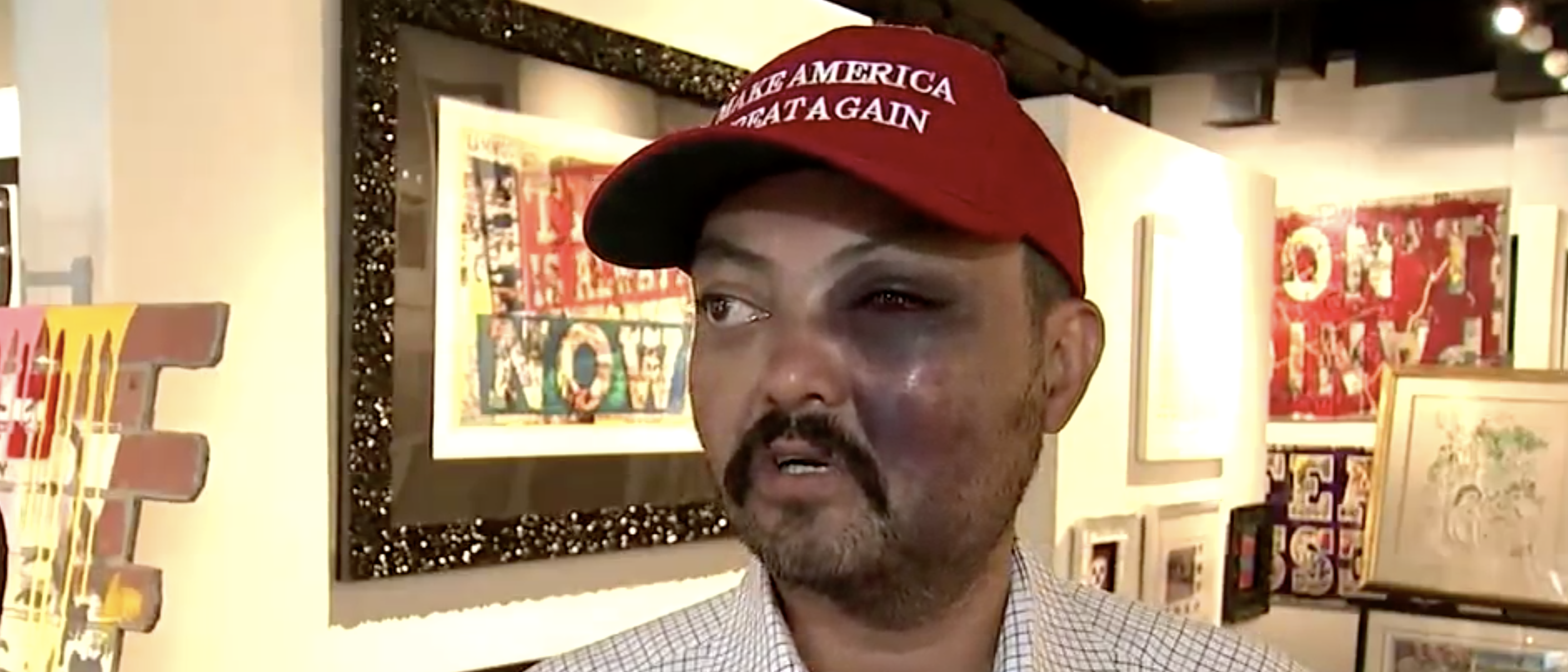 A man in NYC said that he was assaulted by a group of teenagers Tuesday for wearing a MAGA hat. (Screenshot Video/Fox 5 NY)