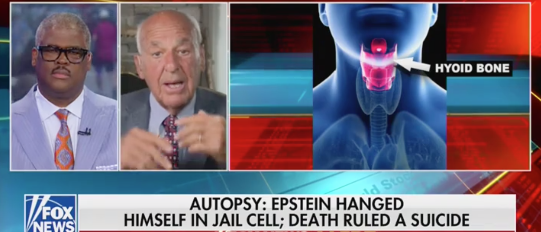 Forensic pathologist Cyril Wecht responds to Epstein's death being ruled a suicide. Screen Shot/Fox News