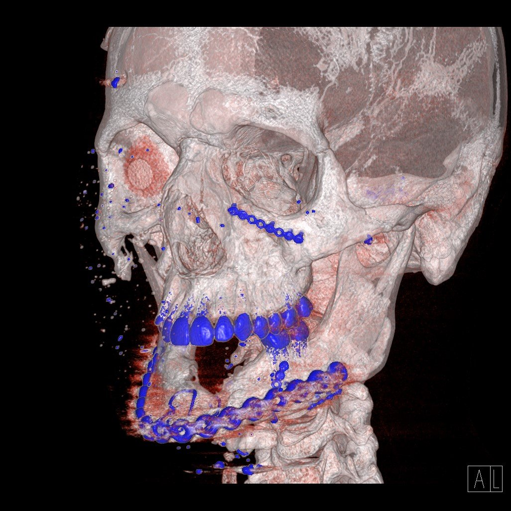 CAT Scan of Kyle Carpenter's jaw from Walter Reed hospital. Used with permission from HarperCollins.