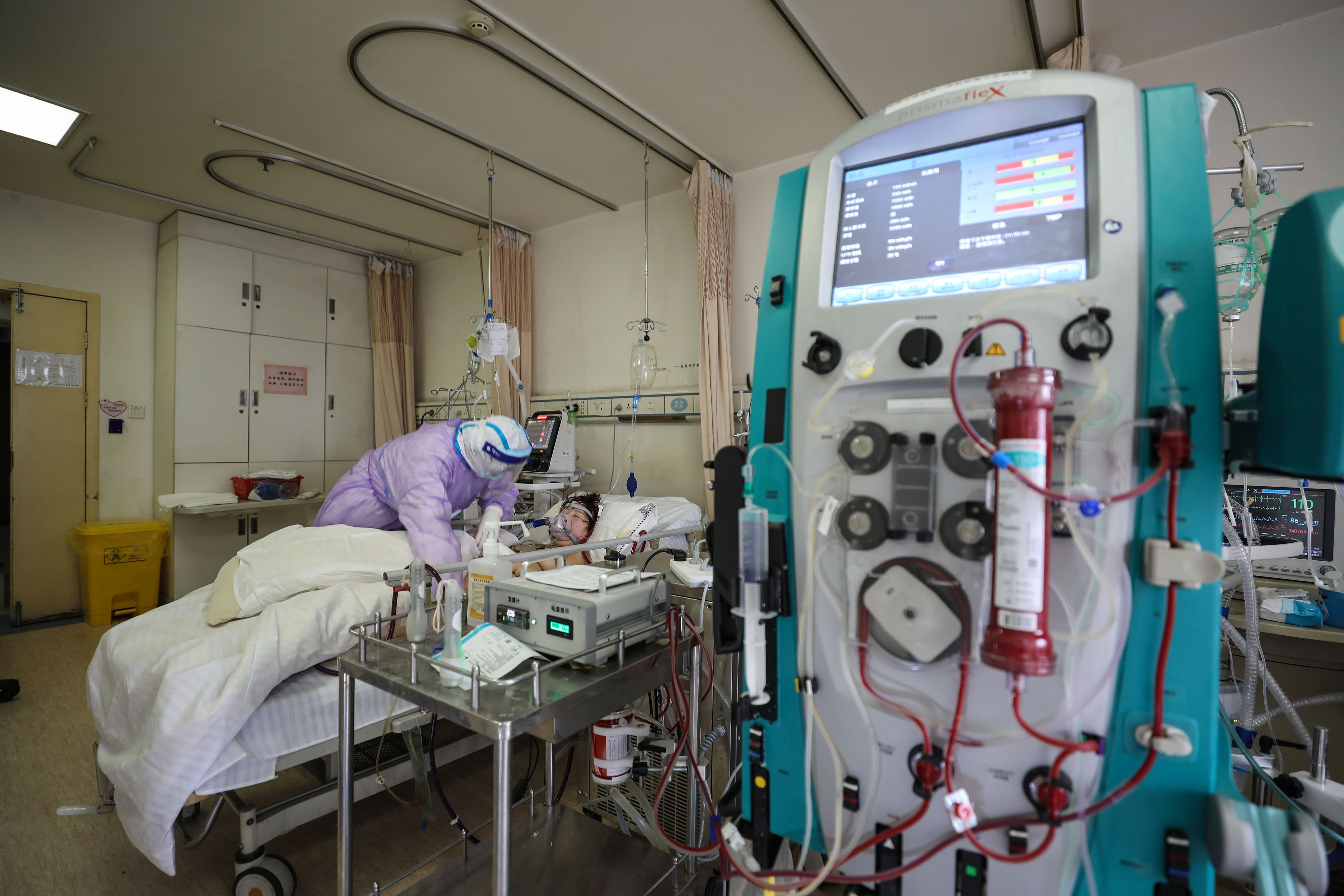 A patient infected by the COVID-19 coronavirus receives treatment by an Extracorporeal membrane oxygenation (ECMO) at the Red Cross hospital in Wuhan in China's central Hubei province. (STR/AFP via Getty Images)