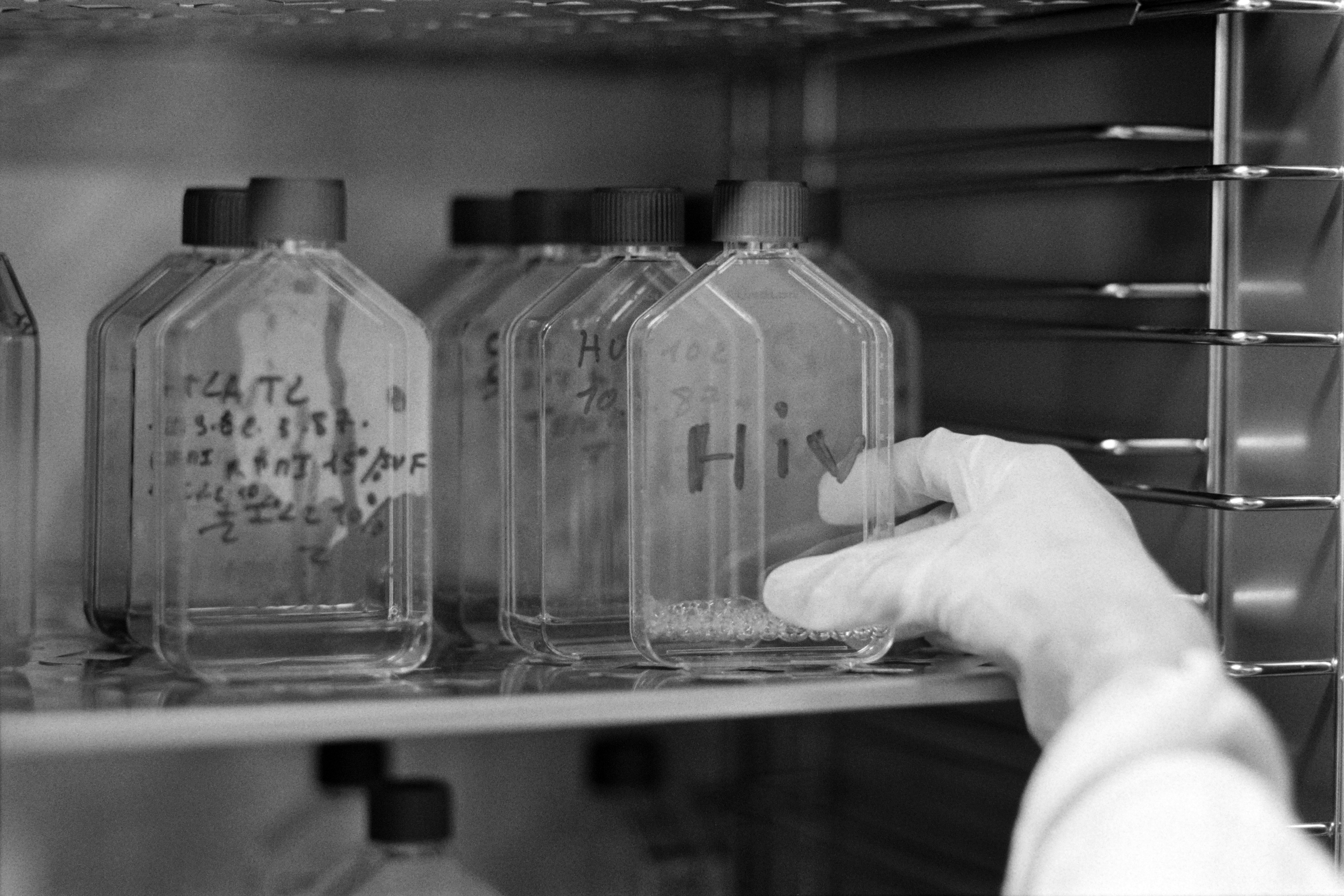 Vials that may or may not be infected with retrovirus of HIV or HTLVI are seen at the high-security AIDS-research laboratory of Saint-Louis hospital in Paris, on March 18, 1987. (DERRICK CEYRAC/AFP via Getty Images)