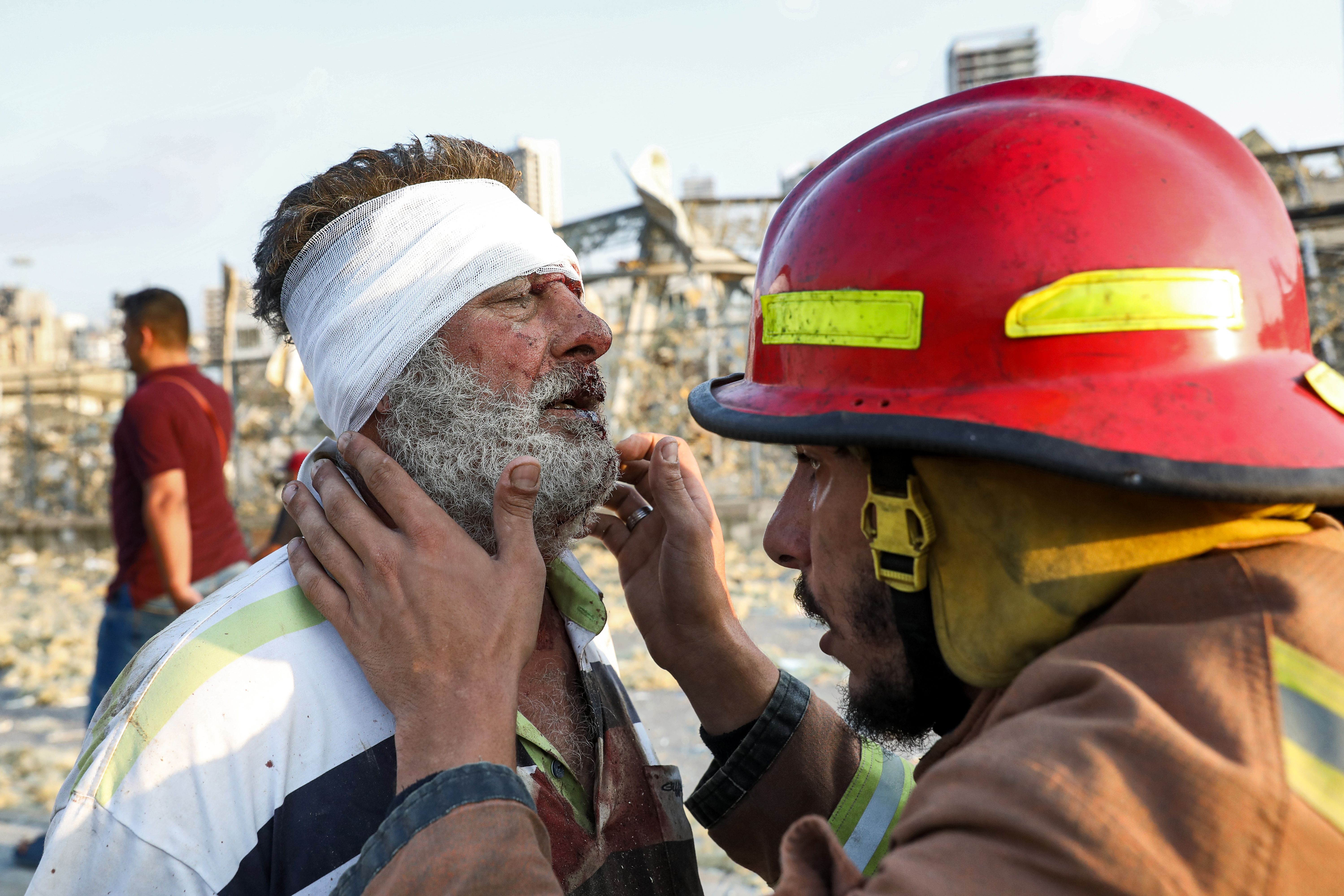 A wounded man is checked by a fireman near the scene of an explosion in Beirut on August 4, 2020. (Photo by ANWAR AMRO/AFP via Getty Images)