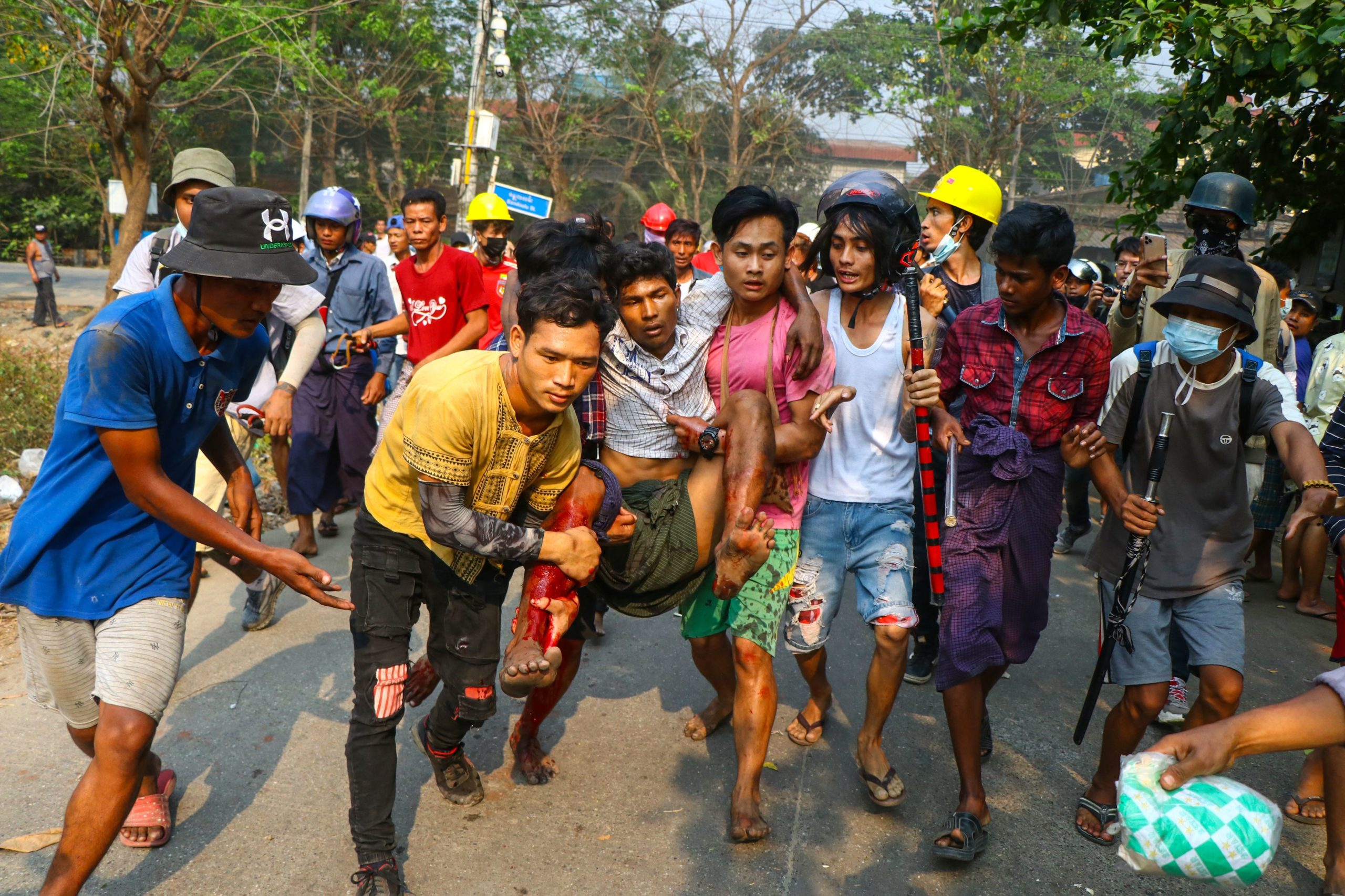 A resident, who was injured during a crackdown by security forces on demonstrations by protesters against the military coup, is carried to safety in Yangon's Hlaing Tharyar township on March 14, 2021. (STR/AFP via Getty Images)